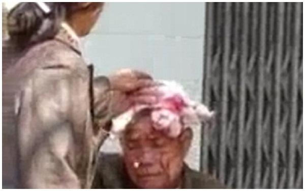 Thái Nguyên: Con dâu đánh chảy máu đầu bố chồng gây phẫn nộ