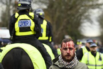Bạo loạn đổ máu trước trận derby bắc London