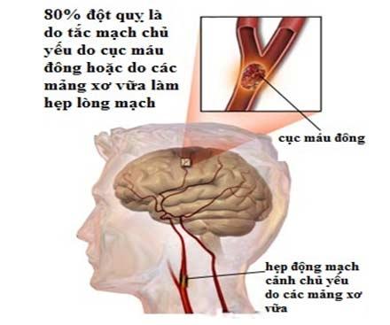 tai biến mạch máu não, tai biến