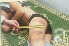 Chuỗi ngày đớn đau của người phụ nữ đẹp bị chồng đánh đập tàn bạo, ép xem clip sex