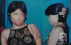Không chịu nối lại tình xưa, người phụ nữ xinh đẹp bị chồng cũ tạt axit hủy hoại dung nhan