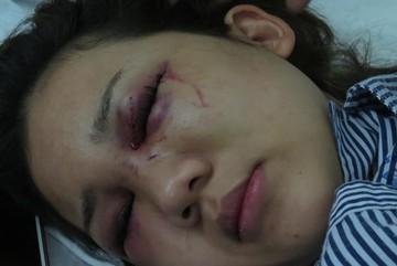 Thiếu úy CA bị tố đánh bạn gái chấn thương sọ não