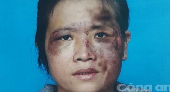 bạo hành, chồng đánh vợ, đánh vợ