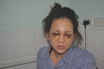 Phút kinh hãi cô gái bị thiếu uý CA đánh chấn thương não