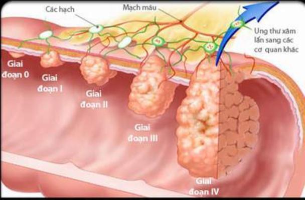 Ung thư dạ dày: Có thể chữa khỏi 100%