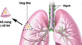 Ho kéo dài, đau ngực nghĩ ngay đến ung thư phổi