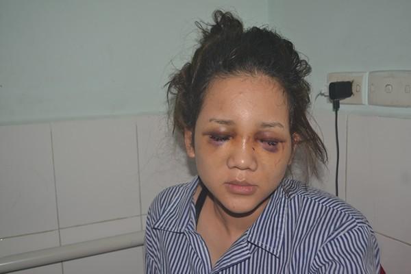 Vụ thiếu úy CA đánh bạn gái: Nạn nhân bất ngờ rút đơn tố cáo