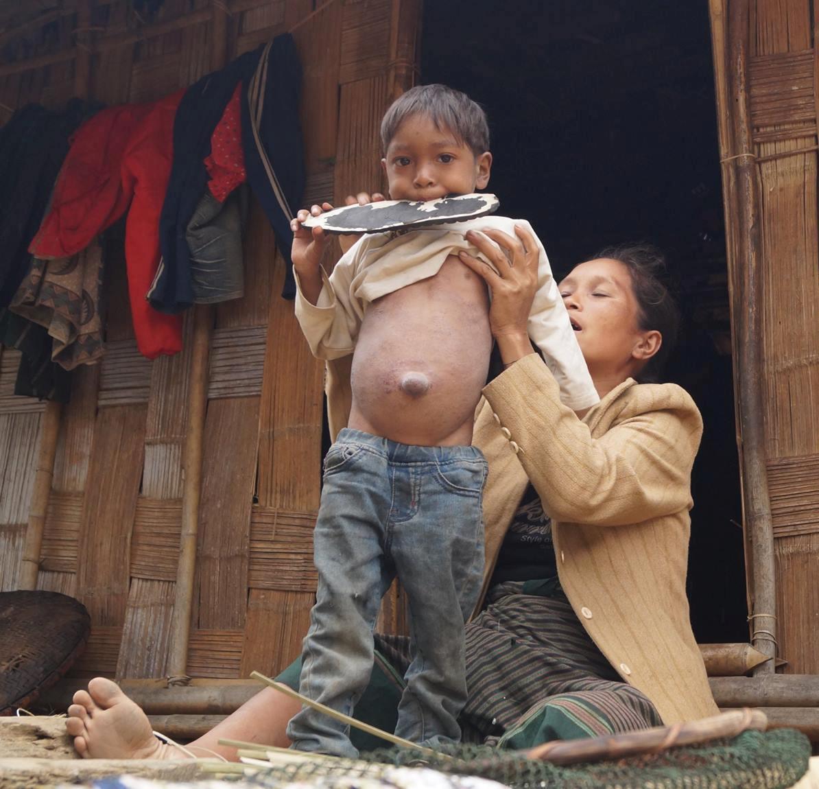 Thương cậu bé người dân tộc Ma Coong không có tiền đi viện