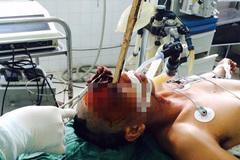 Ngã xe máy, bị cọc dài 60cm đâm xuyên mắt