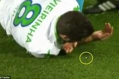 Lĩnh cùi chỏ của Toni Kroos, hậu vệ Wolfsburg nhổ ra...răng