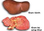 Giảm 1-2 kg/tháng, hãy nghĩ ngay đến ung thư gan