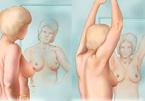 Cách sờ nắn đơn giản phát hiện sớm ung thư vú