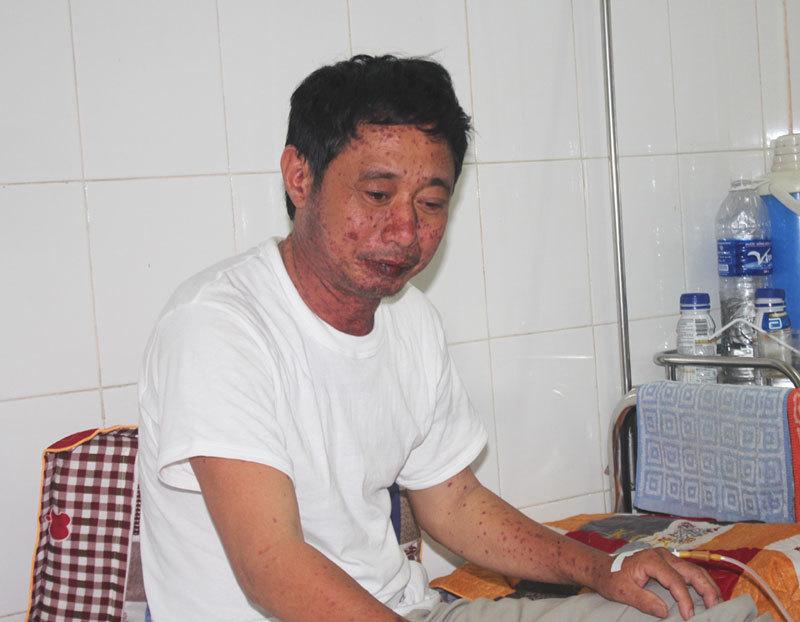 Ăn cá nục bán ở chợ, một người nhập viện