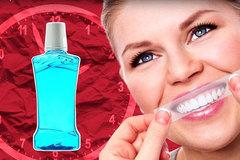 Hé lộ cách làm trắng răng tốt nhất
