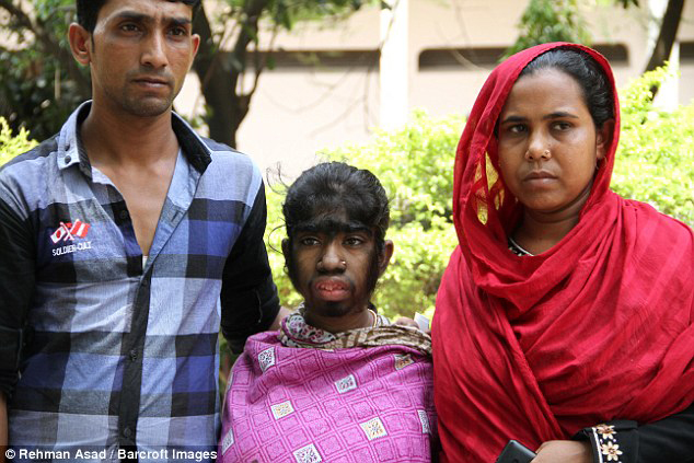 người sói, Bangladesh, xe ôm, chữa trị