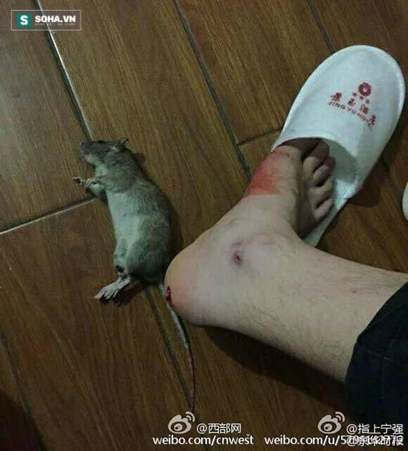 Ở khách sạn sang bị chuột cắn chảy máu