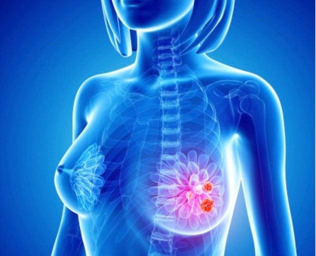 Phát hiện 40 gen đột biến gây ung thư vú
