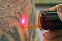 Điều gì xảy ra khi bạn xóa hình xăm bằng laser?