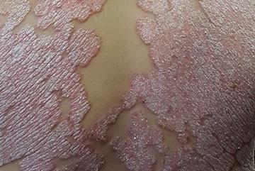 Vẩy nến: Căn bệnh ám ảnh khiến người mắc sợ hơn bị ung thư