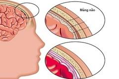Viêm màng não: Dấu hiệu ít ai ngờ