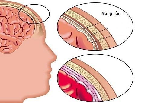 sốt,đau đầu,viêm màng não,nhiễm trùng