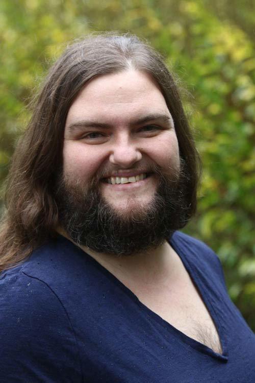 Cô gái có râu tự tin khoe dáng trước ống kính