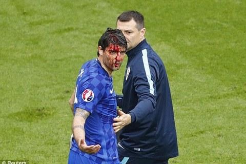 Corluka bị chảy máu