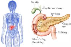 Những dấu hiệu căn bệnh đáng sợ: Ung thư tuyến tụy
