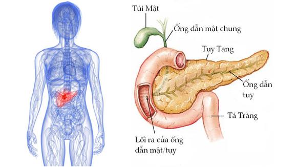 ung thư, ung thư tuyến tụy