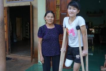 Đắk Lắk kết luận vụ nữ sinh bị cưa chân