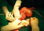 Khối u 2kg chứa lông, móng trong bụng bé 11 tuổi