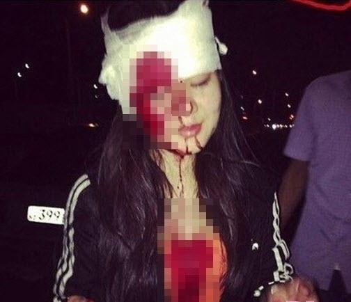 Ôm ấp bạn trai trên ô tô: Hotgirl nhận cái kết kinh hoàng