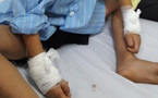 Hy hữu: Rút đinh tay phải, bác sĩ mổ nhầm tay trái