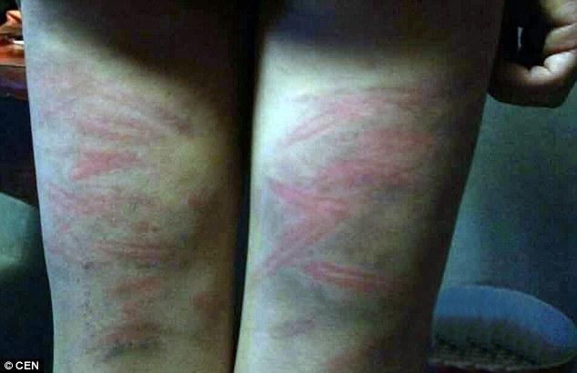 bạo lực học đường, lạm dụng thể chất
