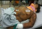 Hà Nội: Một phụ nữ bị sét đánh chảy máu não