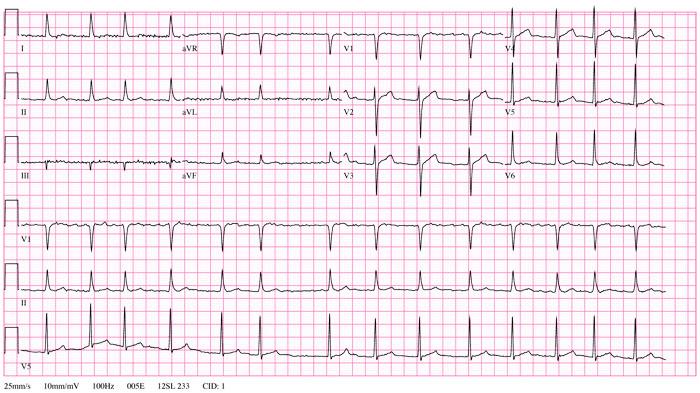 Rung nhĩ, rối loạn nhịp tim thường gặp