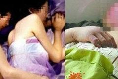 Vợ phải cắt bỏ cánh tay vì chiều chồng say rượu