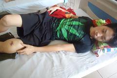 Giấc mơ kỹ sư của chàng trai ung thư xương 18 tuổi