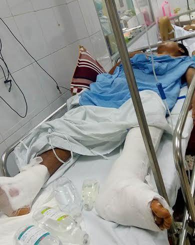 bệnh viện Việt Đức, mổ nhầm chân