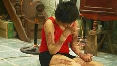 Mẹ cô gái bị chồng đốt gửi thư đến Bộ trưởng Y tế