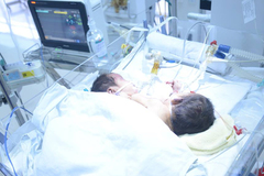 Cặp song sinh dính liền tử vong trên đường về Hà Giang