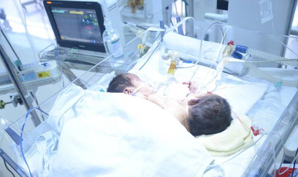 cặp song sinh dính liền, cặp song sinh dính liền tử vong, Hà Giang, song sinh dính liền, song sinh, 2 bé trai dính liền