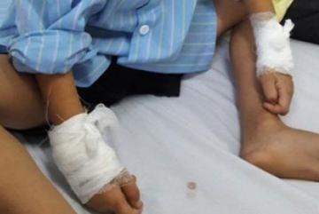 Mổ nhầm tay bé 6 tuổi: Đình chỉ bác sỹ 1 tháng