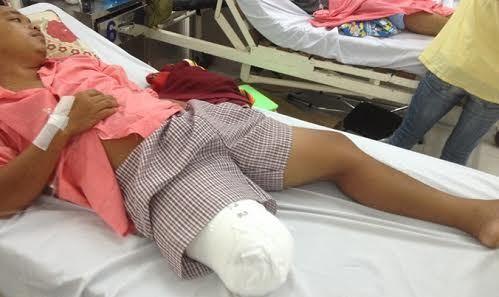 Nam thanh niên bị cưa chân vì bác sĩ chẩn đoán sai