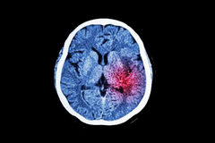 Tai biến mạch não: 10 yếu tố nguy cơ có thể dự phòng