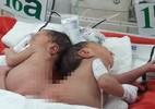Hai bé sơ sinh dính nhau phần mông