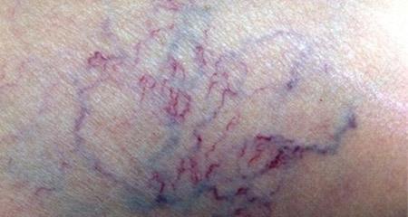 4 dấu hiệu cần đi khám ngay nếu bạn không muốn bị cắt cụt chân