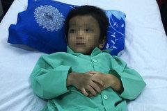 Bé trai bị mẹ ruột và cha dượng đánh gãy xương đùi