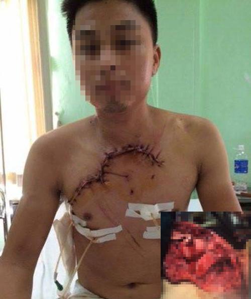 tai nạn hy hữu, lộ tim phổi, bệnh viện Việt Đức