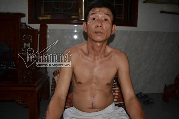 Bệnh nhân 'phản pháo' GS hàng đầu mở bụng không cắt u